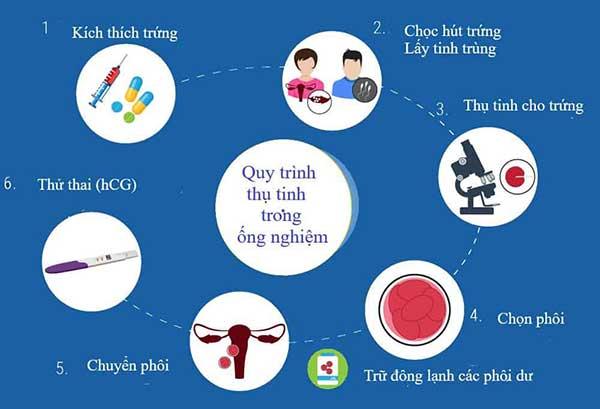 điều trị đa nang buồng trứng bằng phương pháp thụ tinh trong ống nghiệm (ivf)