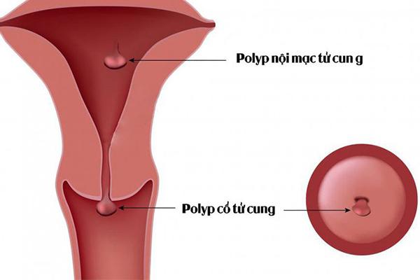 Polyp tử cung có thể là nguyên nhân gây ra cường kinh