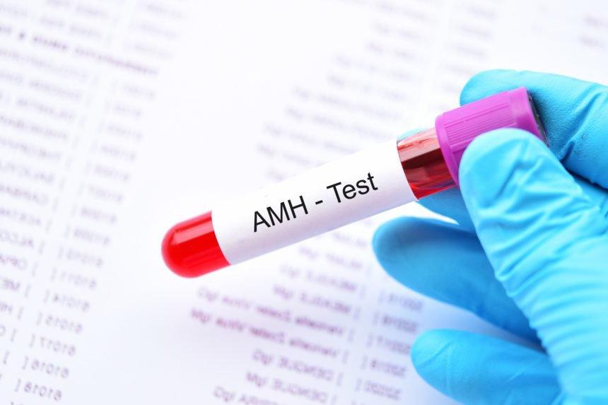 Chỉ số AMH đánh giá dự trữ buồng trứng