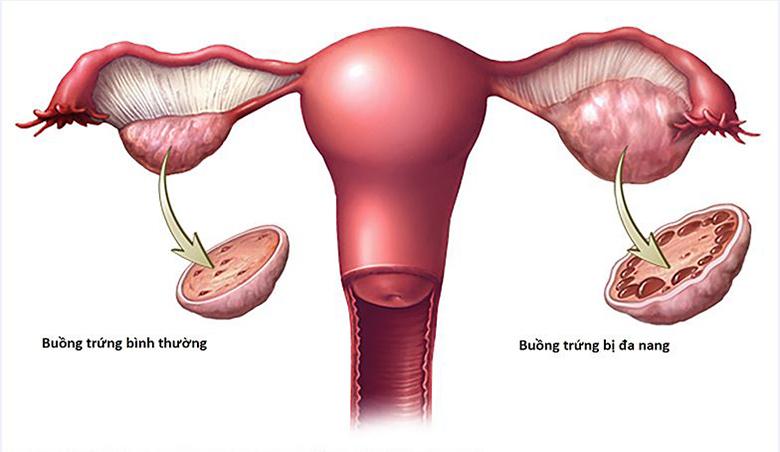buồng trứng bình thường và buồng trứng bị đa nang